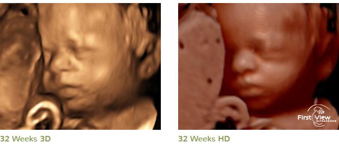 3d 4d hd ultrasound image gallery firstview hd ultrasound